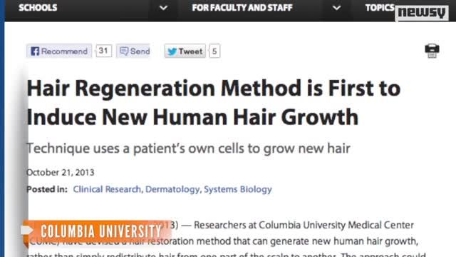New_Hair_Loss_Treatment_Could_Mean_the_End_of_Baldness.jpg